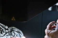 laserová operácia očí Cléber Nascimento da Silva 04