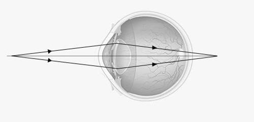 12df6fed9 Presbyopia   iClinic očná klinika Bratislava, Banská Bystrica